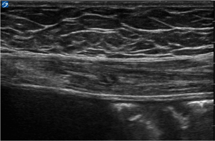 Bats Better Anaesthesia Through Sonography